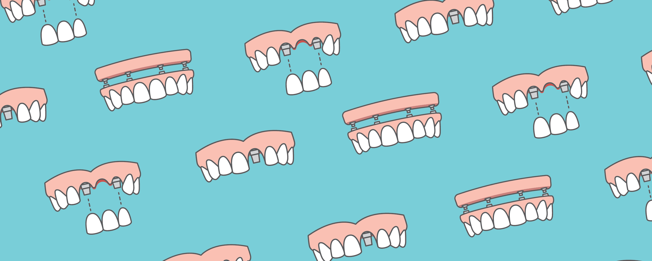 teeth implant illustration